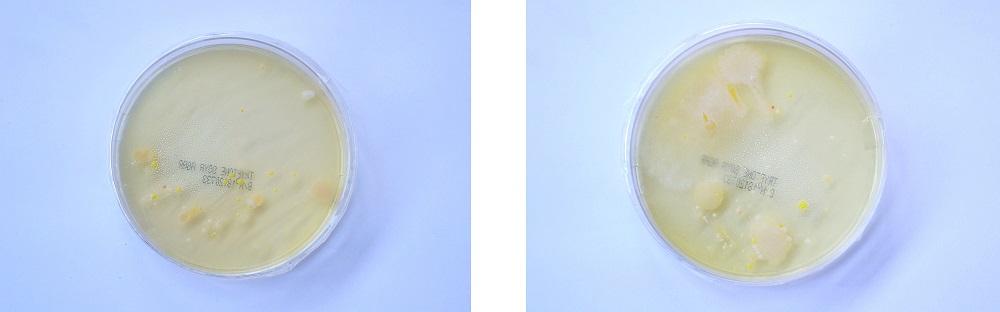 heels vs flats bacteria petri dish